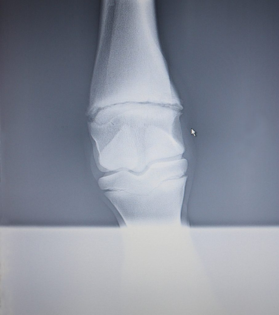 x-ray - epiphysial cartilages and severe fetlock misalignment